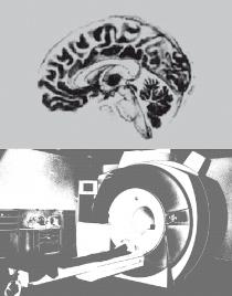 Forschungsschwerpunkt Translationale Neurowissenschaften Mainz